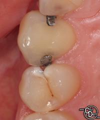 carie dentaire et amalgames infiltrés