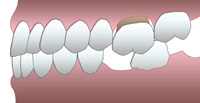 égression de la dent antagoniste